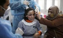مرام العماوي: طفلة من غزة تخفي حروقها خلف قناع ثلاثي الأبعاد
