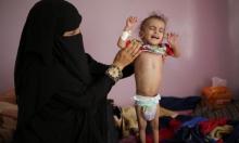 """برنامج الأغذية العالمي يُحذّر: مجاعة وشيكة في """"جحيم"""" اليمن"""
