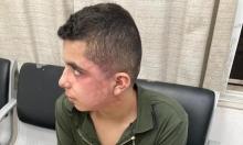 الطيبة: الشرطة تعتدي بالضرب المبرح على فتى