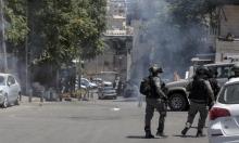 إصابة خطيرة برصاص الاحتلال الحي في سلوان