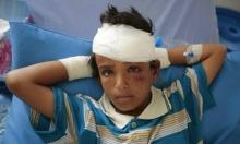 اليمن: 10 آلاف طفل قُتِلوا أو شوهوا خلال الحرب